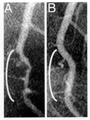 Arteryaftervegandiet